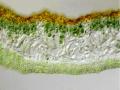 Gelbflechte, Xantoria parientina, Flechtenschnitt